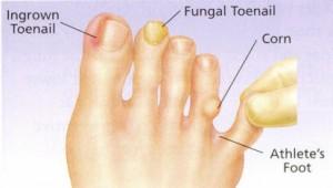 negi genitale în tratamentul anusului tratarea papiloamelor în locuri intime